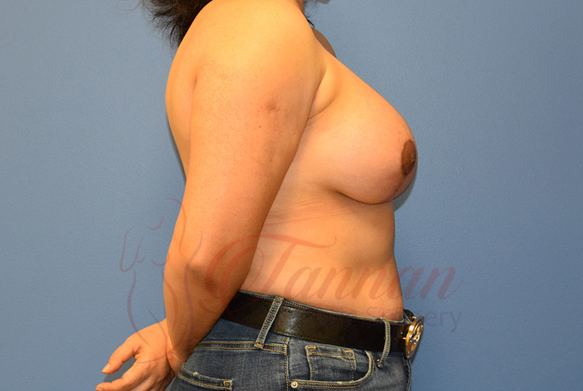 Breast-Augmentation-After-2502-Tannan-Plastic-Surgery