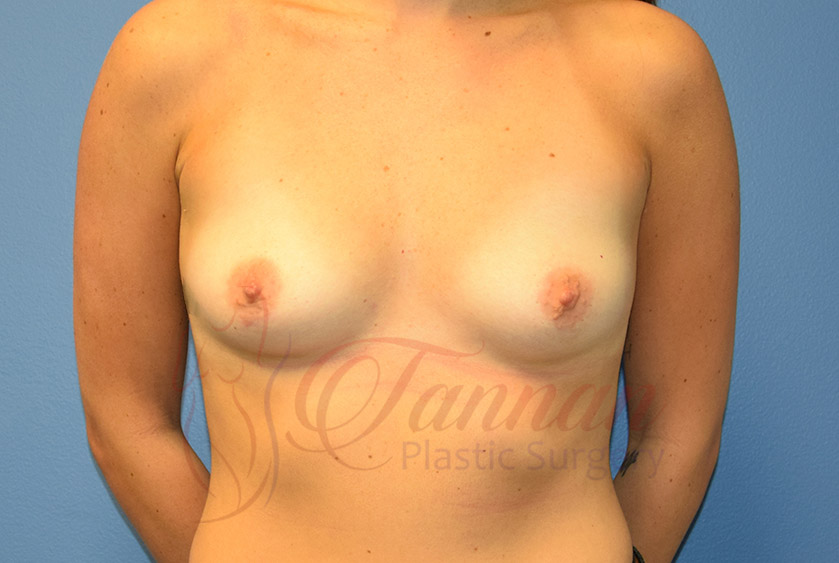 Breast-Augmentation-After-2401-Tannan-Plastic-SurgeryBreast-Augmentation-After-2401-Tannan-Plastic-Surgery