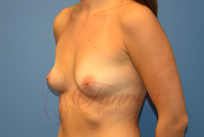 Breast-Augmentation-Before-2002-Tannan-Plastic-Surgery