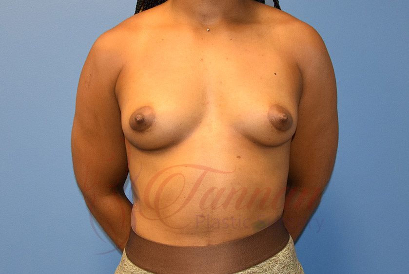 Breast-Augmentation-Before-2101-Tannan-Plastic-Surgery