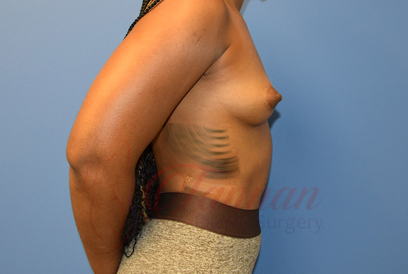 Breast-Augmentation-Before-2102-Tannan-Plastic-Surgery