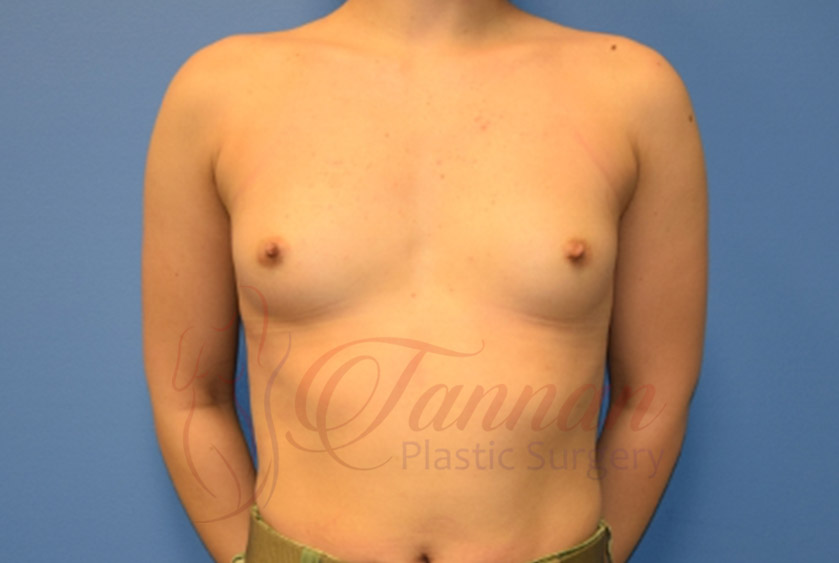 Breast-Augmentation-Before-2201-Tannan-Plastic-Surgery