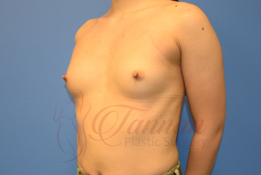 Breast-Augmentation-Before-2202-Tannan-Plastic-Surgery