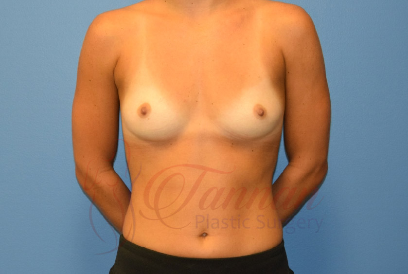 Breast-Augmentation-Before-2401-Tannan-Plastic-Surgery