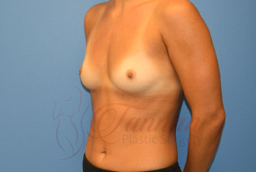 Breast-Augmentation-Before-2403-Tannan-Plastic-Surgery