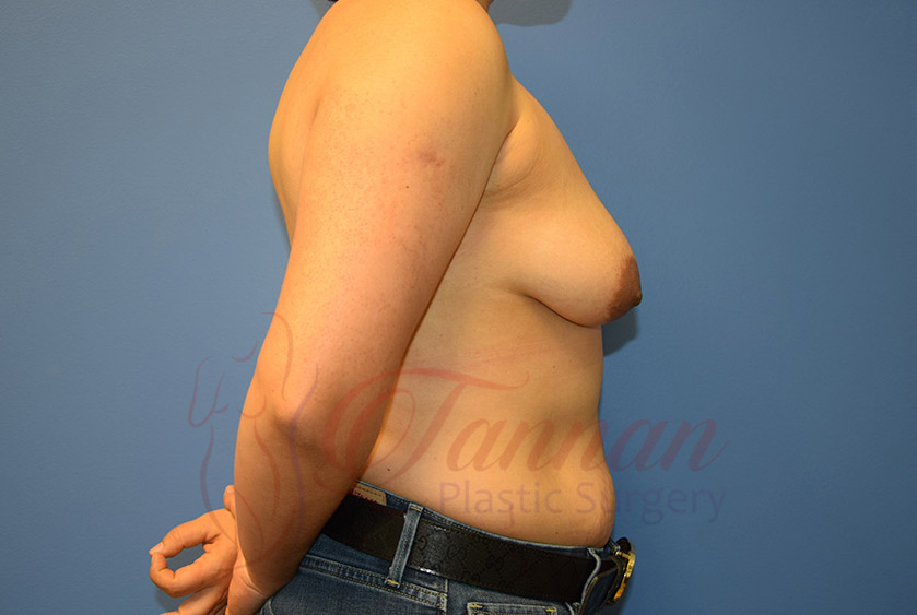 Breast-Augmentation-Before-2502-Tannan-Plastic-Surgery