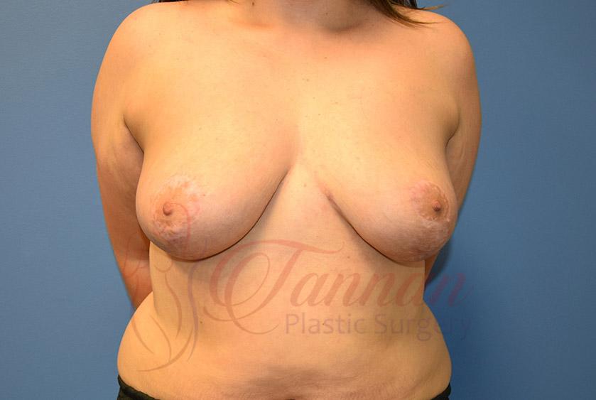 Breast-Lift-After-0401-Tannan-Plastic-Surgery