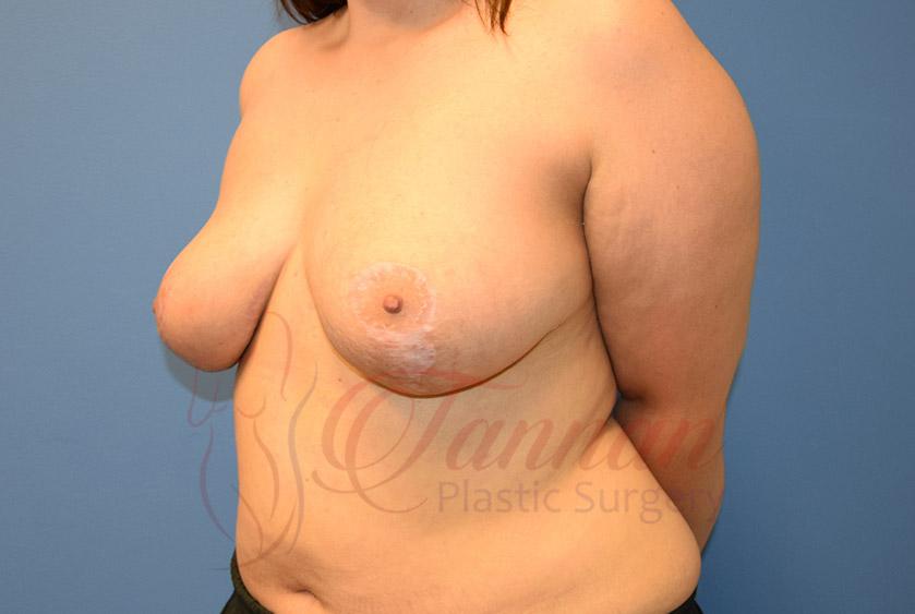 Breast-Lift-After-0402-Tannan-Plastic-Surgery