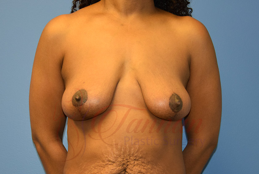 Breast-Lift-After-0501-Tannan-Plastic-Surgery
