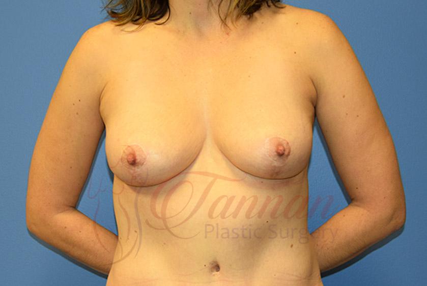 Breast-Lift-After-0701-Tannan-Plastic-Surgery