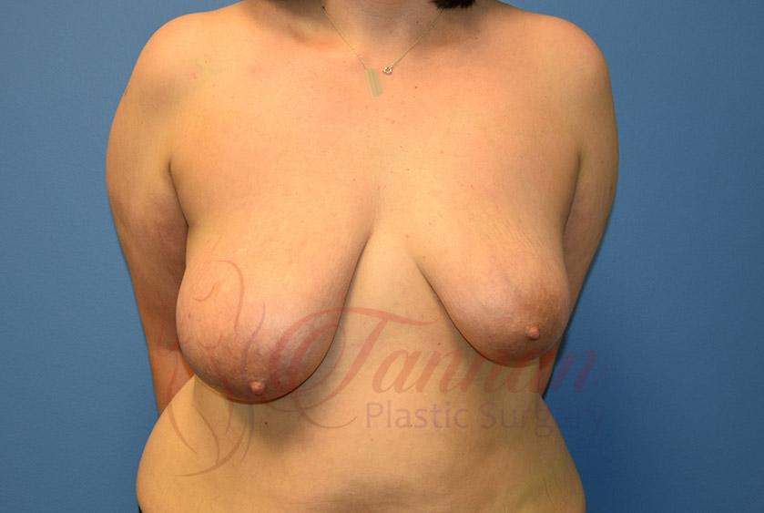 Breast-Lift-Before-0401-Tannan-Plastic-Surgery