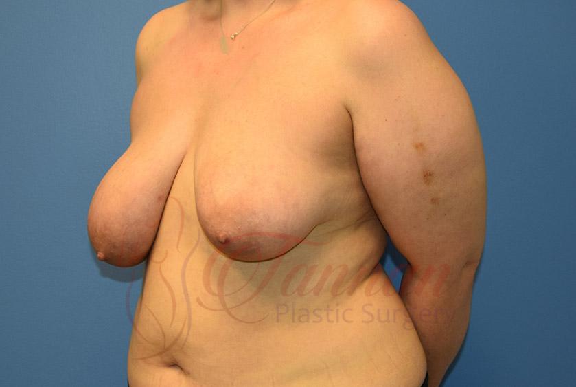 Breast-Lift-Before-0402-Tannan-Plastic-Surgery