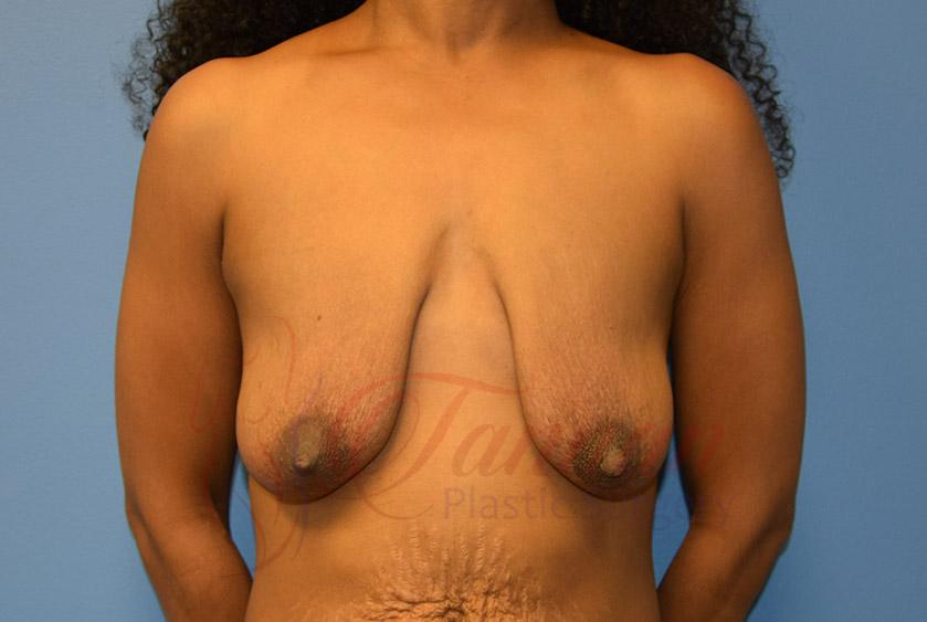 Breast-Lift-Before-0501-Tannan-Plastic-Surgery