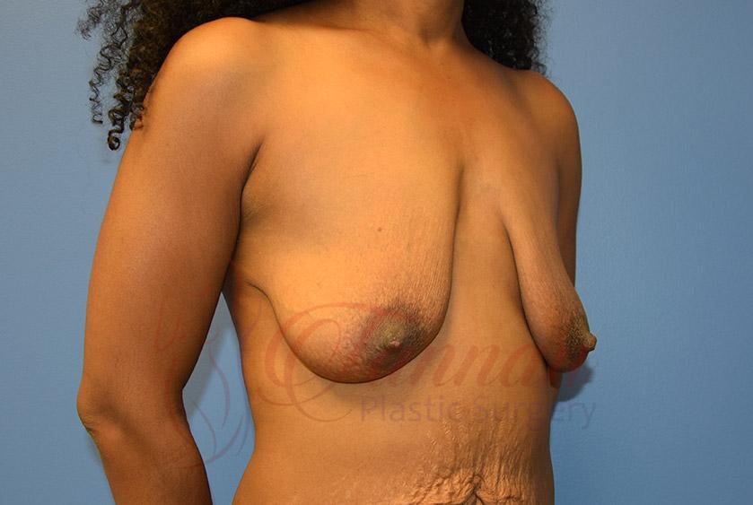 Breast-Lift-Before-0502-Tannan-Plastic-Surgery