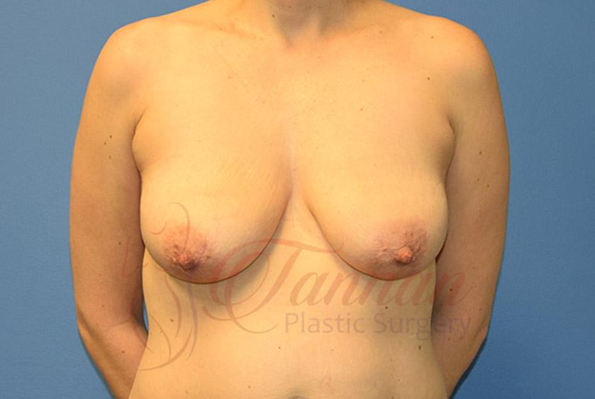 Breast-Lift-Before-0701-Tannan-Plastic-Surgery