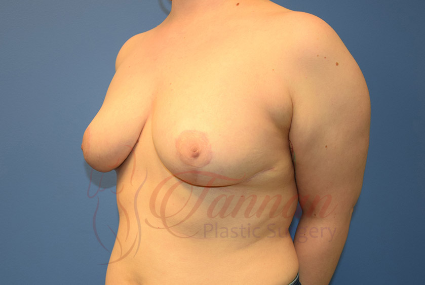 Breast-Reduction-After-0402-Tannan-Plastic-Surgery