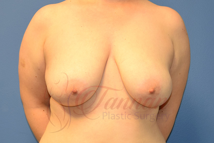 Breast-Reduction-Before-0401-Tannan-Plastic-Surgery