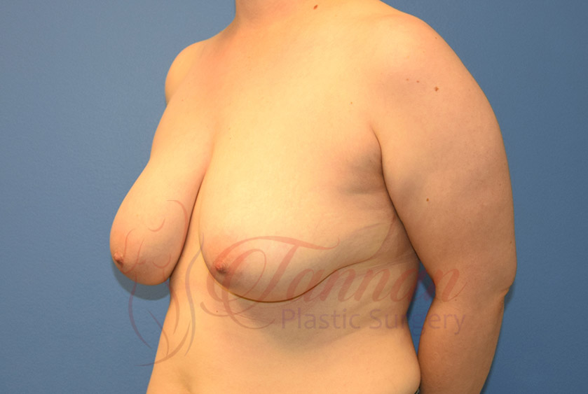 Breast-Reduction-Before-0402-Tannan-Plastic-Surgery
