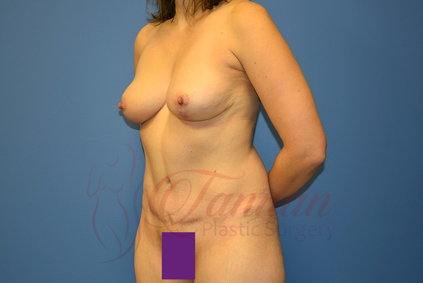 Mommy-Makeover-After-0703-Tannan-Plastic-Surgery