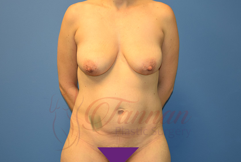 Mommy-Makeover-Before-0701-Tannan-Plastic-Surgery