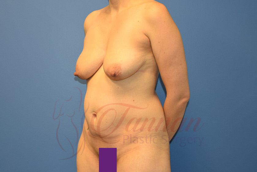 Mommy-Makeover-Before-0703-Tannan-Plastic-Surgery