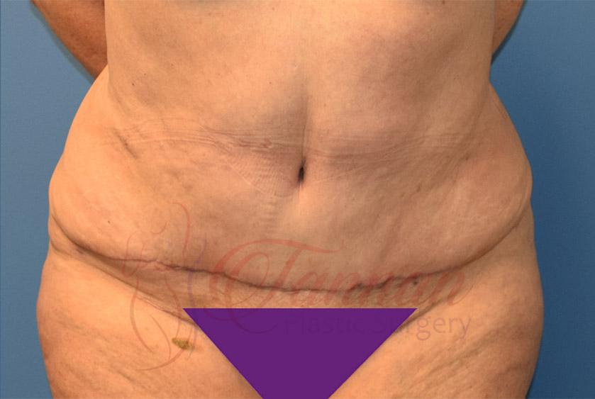 Tummy-Tuck-After-1201-Tannan-Plastic-Surgery