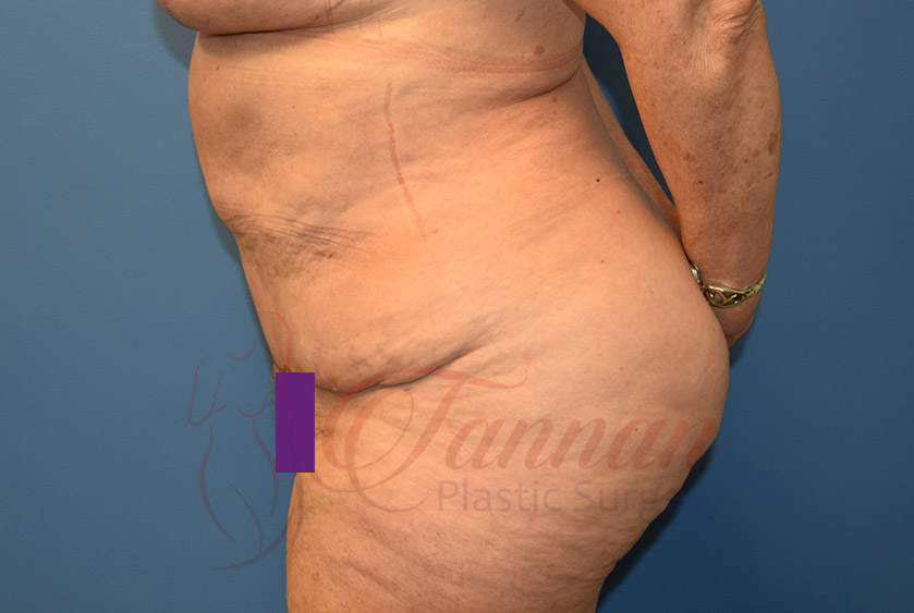 Tummy-Tuck-After-1202-Tannan-Plastic-Surgery