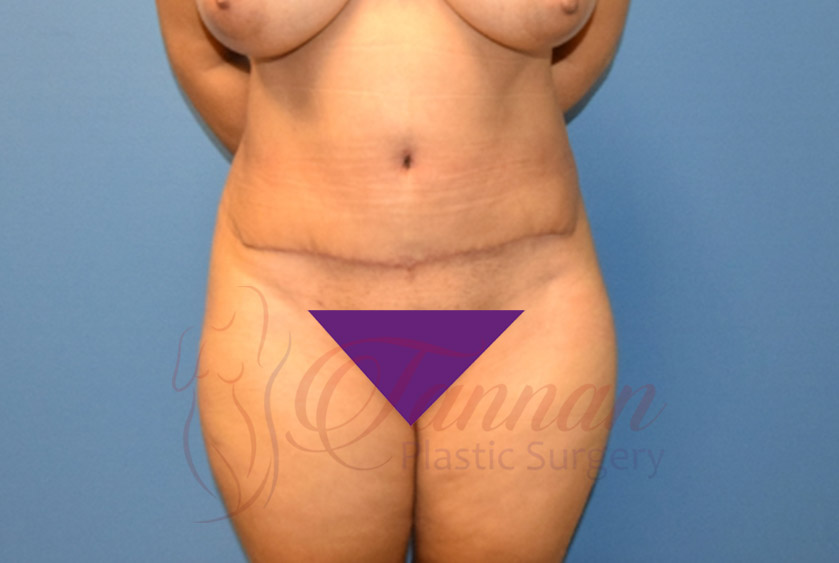 Tummy-Tuck-After-1301-Tannan-Plastic-Surgery