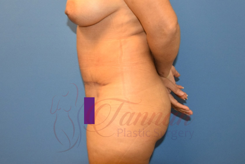 Tummy-Tuck-After-1302-Tannan-Plastic-Surgery