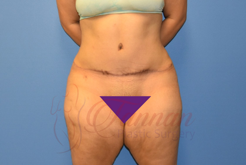 Tummy-Tuck-After-1401-Tannan-Plastic-Surgery