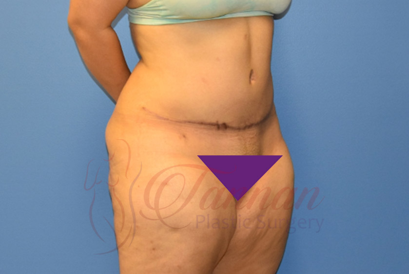 Tummy-Tuck-After-1402-Tannan-Plastic-Surgery
