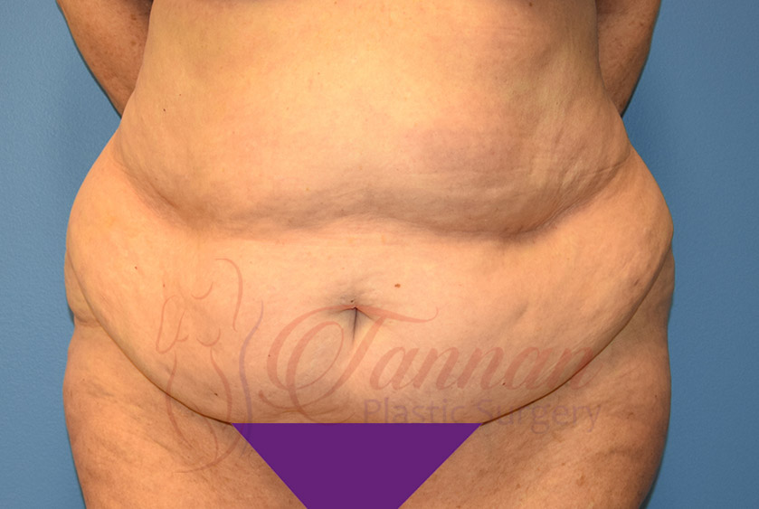 Tummy-Tuck-Before-1201-Tannan-Plastic-Surgery