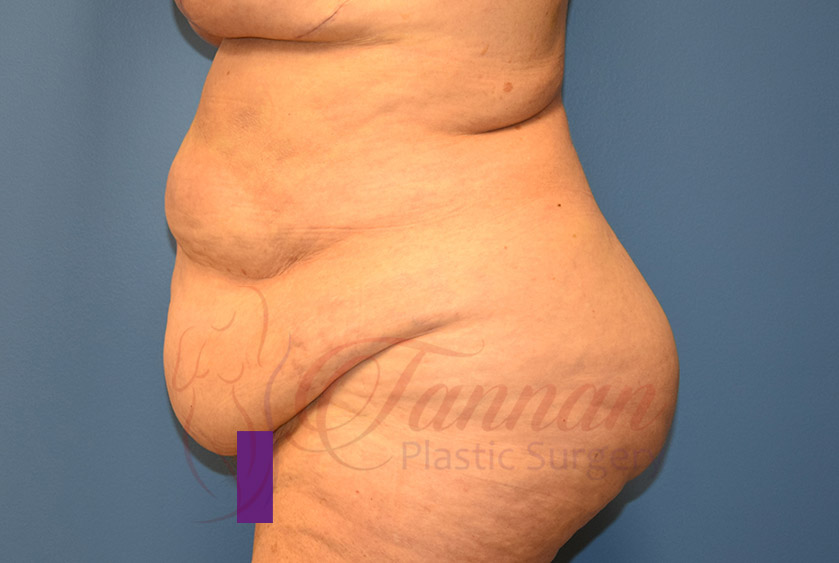 Tummy-Tuck-Before-1202-Tannan-Plastic-Surgery