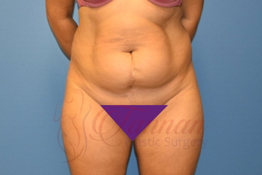 Tummy-Tuck-Before-1301-Tannan-Plastic-Surgery