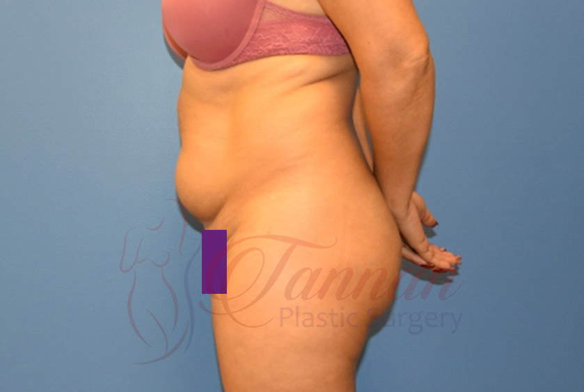 Tummy-Tuck-Before-1302-Tannan-Plastic-Surgery