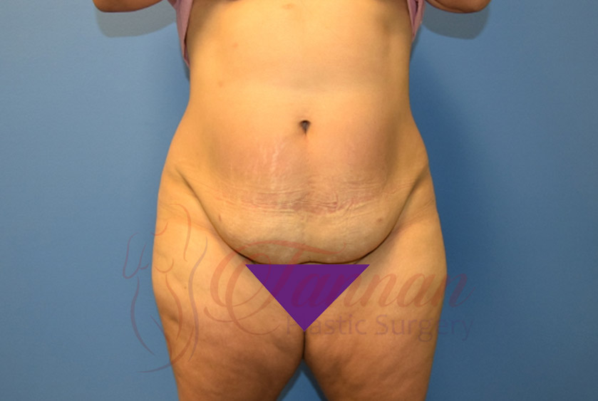 Tummy-Tuck-Before-1401-Tannan-Plastic-Surgery