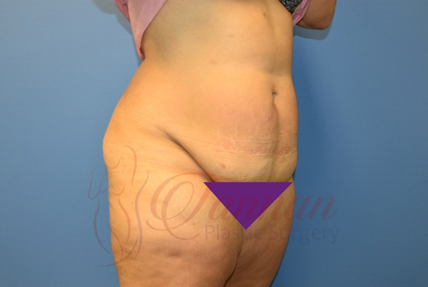 Tummy-Tuck-Before-1402-Tannan-Plastic-Surgery