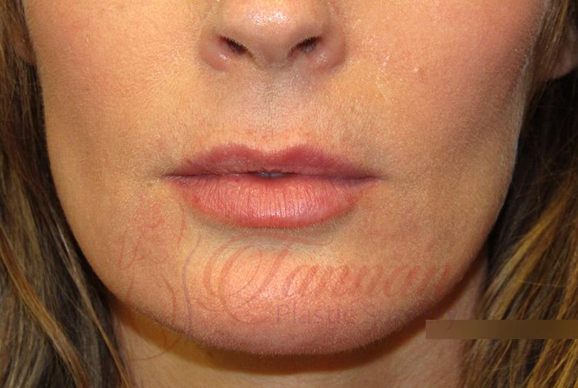 Lip Filler Migration After