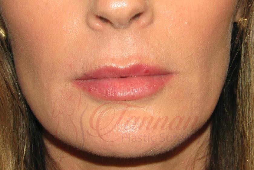 Lip Filler Migration Before